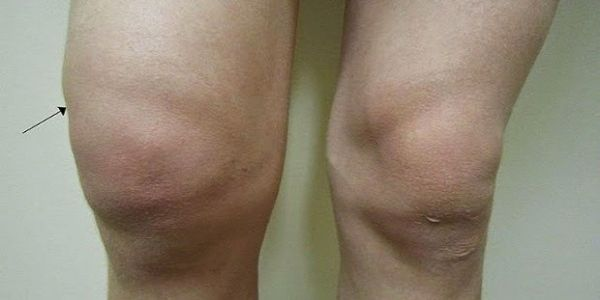 Natural Way That Will Relieve The Pain In The Knee And Water In The Knee!