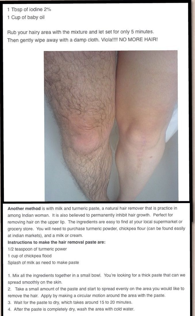 Natural hair removal! this picture freaks me out but wharves. does anyone know if this actually works?: