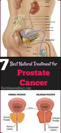 Can you be cured of prostate cancer naturally? One of the most challenging conditions that a man can deal with is definitely Prostate Cancer. So, finding the right Prostate Cancer Treatment and adapting it to your day to day life can be very important. The problem is that you never know which options may work for you. That's why working with a doctor to identify these issues can be extremely important.