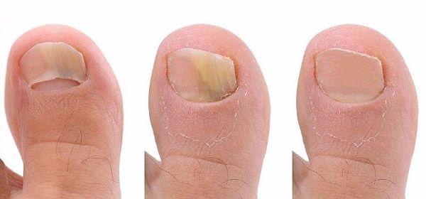 Fungos dos pés e das unhas que tipo de perigo está oculto nesta doença e como se livrar dela? De acordo com as estatísti...