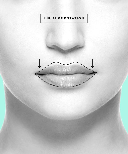 Lip Augmentation aka Lip Enhancement