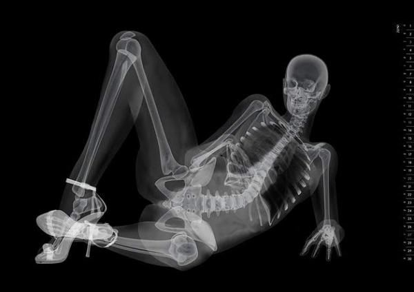 Belülről mindenki egyforma – Dögös lányok röntgen képei