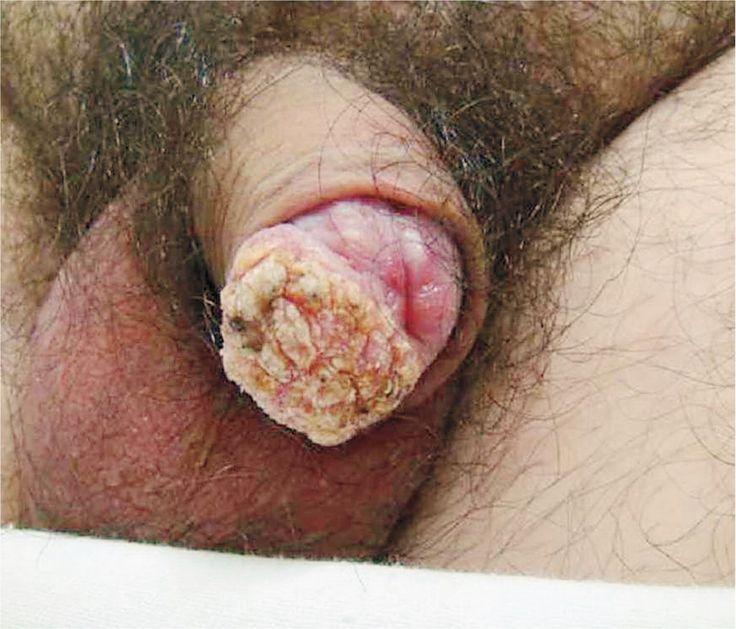 Squamous-Cell Carcinoma of the Penis with Human Papillomavirus — NEJM