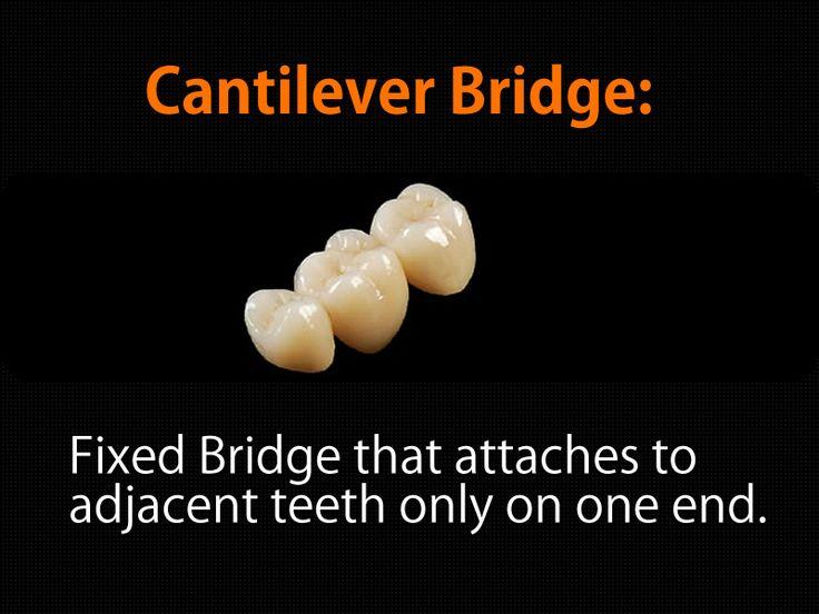 how to clean fixed bridge teeth