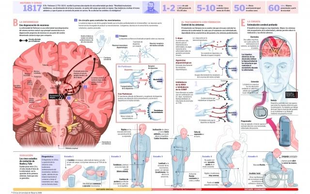 191 Qu 233 Es Y C 243 Mo Se Trata La Enfermedad De Parkinson