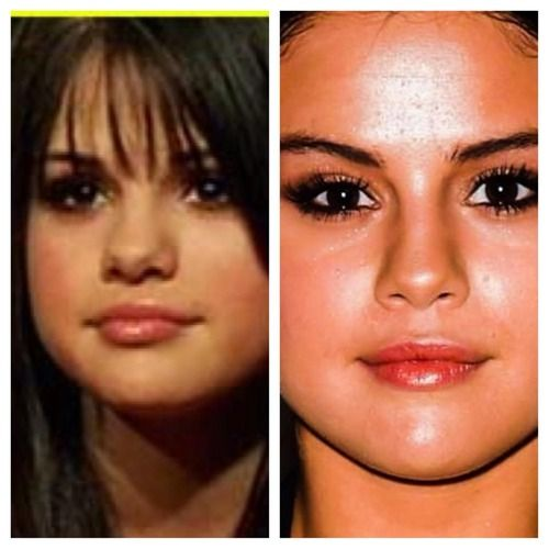 Best Places In The World To Have Plastic Surgery: Selena Gomez Nose Job
