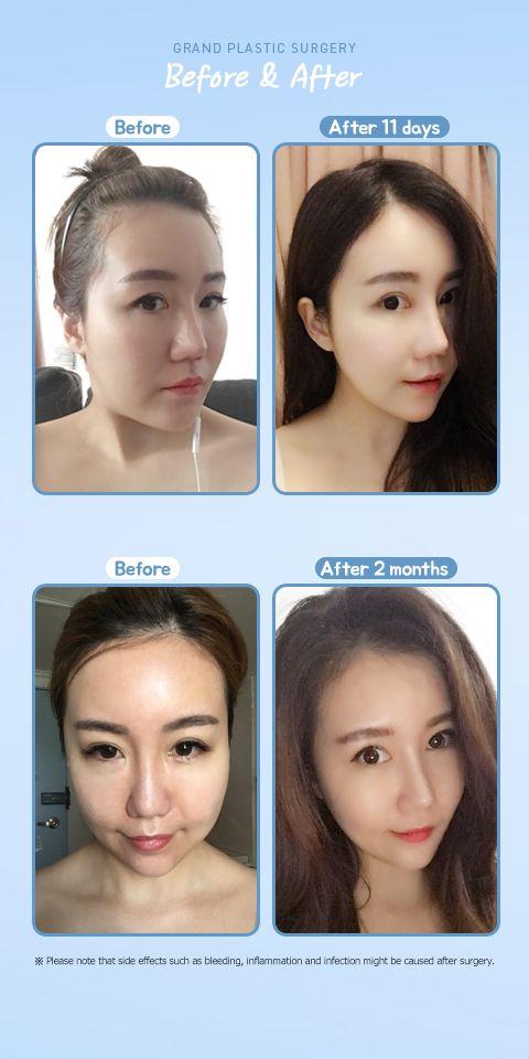 Nose surgery, fat graft | 整容 | Korean plastic surgery