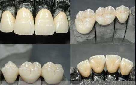 Cobalt-chromium porcelain teeth which harm