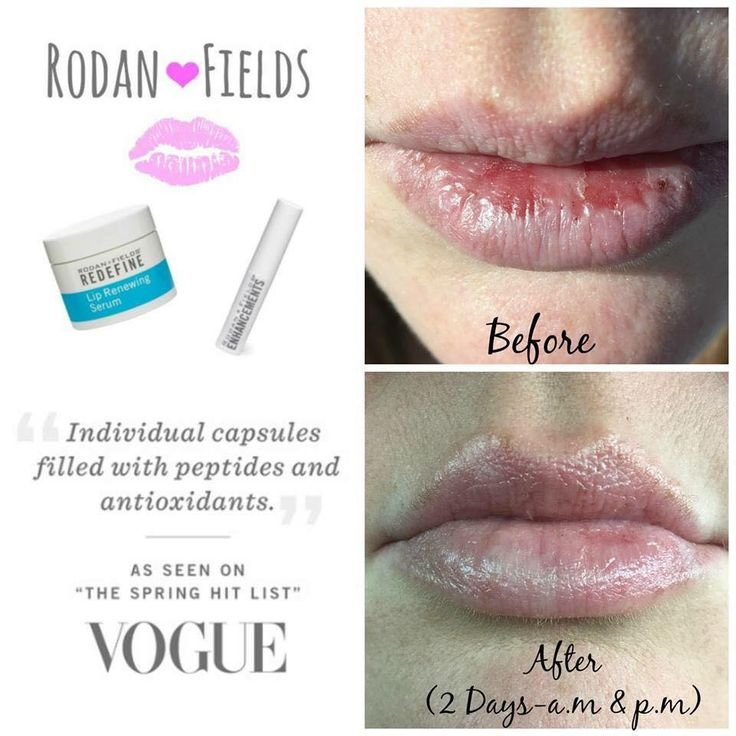 Winter weather is so hard on our lips! Give 'em a break and soothe them with Rodan + Fields Lip Regimen! PM me to get yours today!