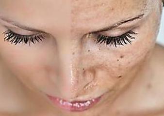 Eliminare le macchie della pelle dal viso