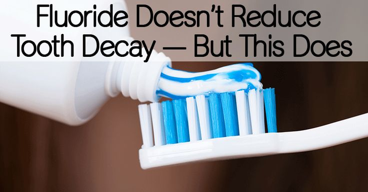 Fluoride Doesn't Reduce Tooth Decay — But This Does - Healthy Holistic Living