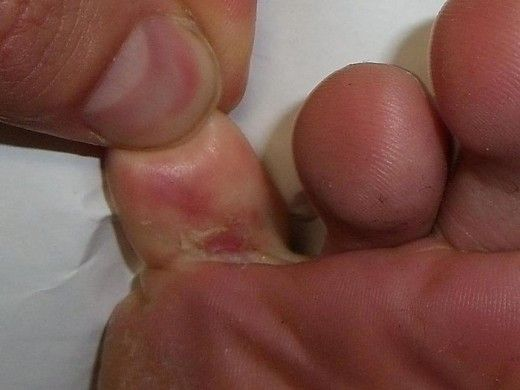 Have you got foot fungus? Sounds disgusting doesn't it? Athletes foot is the common name for a fungal infection between the toes but you can also get fungal nail infections. Either way, if you have got a fungal infection you will want to know how to get rid of it! This article gives you the low down on home remedies and over the counter treatments that really work so check it out today!
