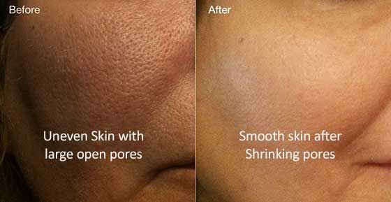 Shrink up the large & open skin pores, get smooth skin instantly