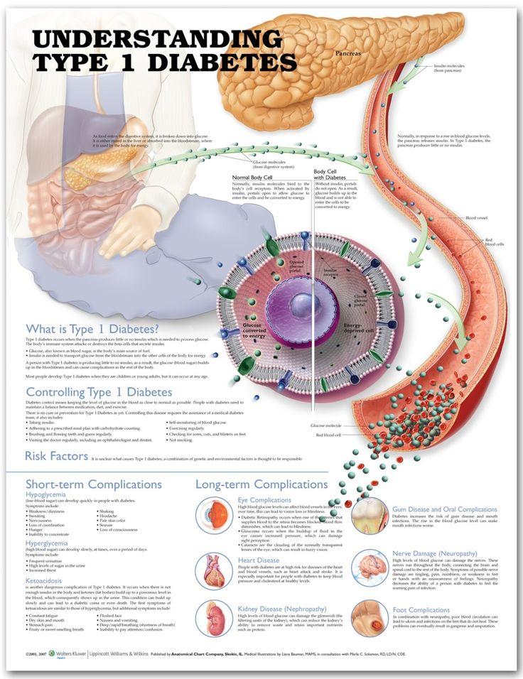 Type 1 Diabetes Chart - Diabetes Poster - AnatomyStuff