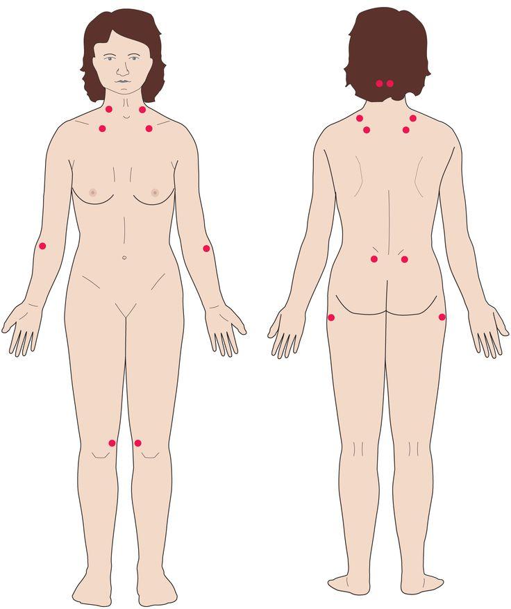 Fibromyalgian taustalla on kivunsäätelyn ja autonomisen hermoston herkistyminen 5/2013 /Potilaan lääkärilehti