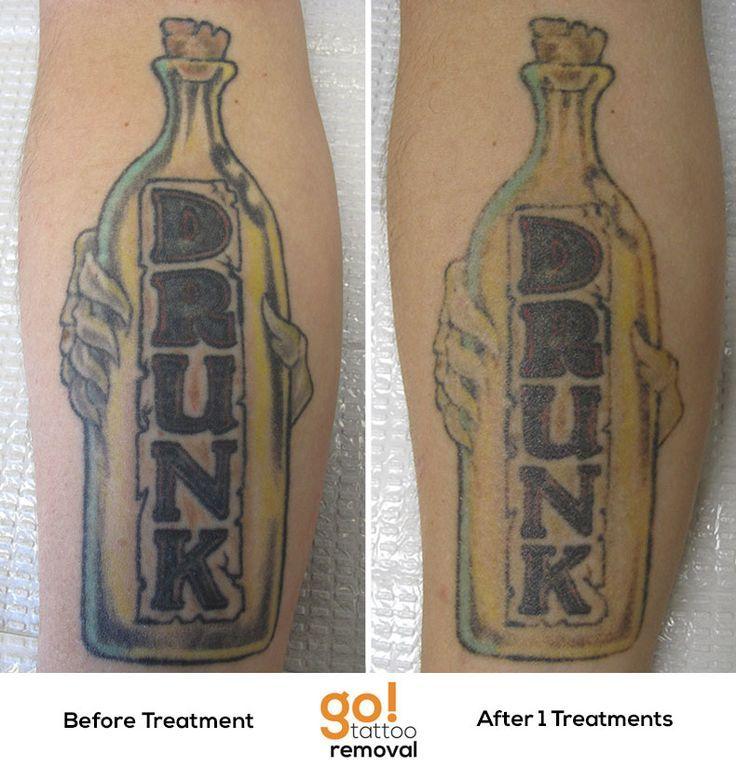 laser removal dark tattoo laser tattoo closer tattoo removal tattoo ...