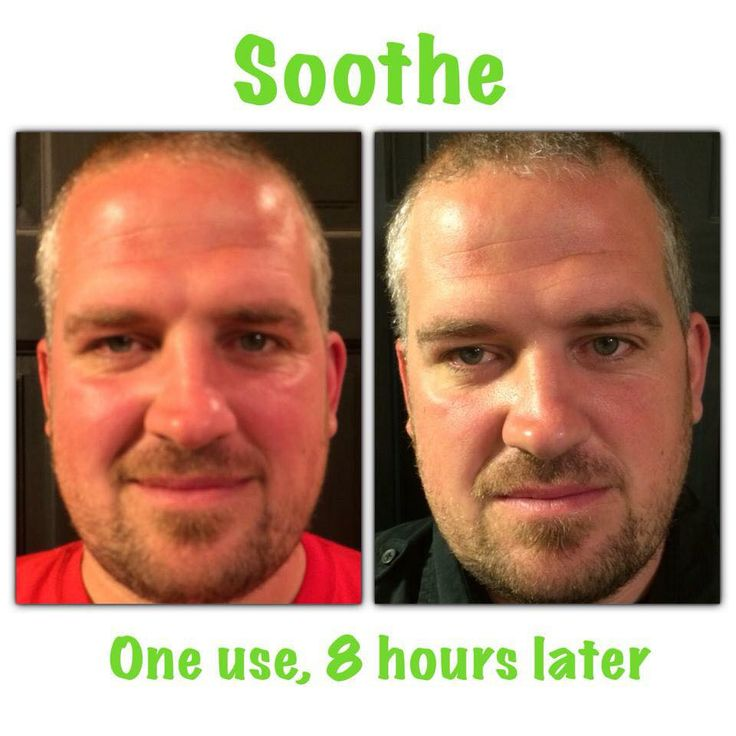 Chad is the husband of fellow consultant Christina. He didn't listen to her when she told him to apply a sun block at the Red's game. Guess what happened..... He got burnt!!! Here comes Soothe to the rescue!! Just check out his results.. only 8 hours later! I am sure he must be happy his wife sells R+F!! Soothe is a must have in every medicine cabinet!!! It can take care of Eczema, psoriasis, rosacea, skin irritation, sin burn and has many more uses. https://iarman.myrandf.com/Shop/Soothe