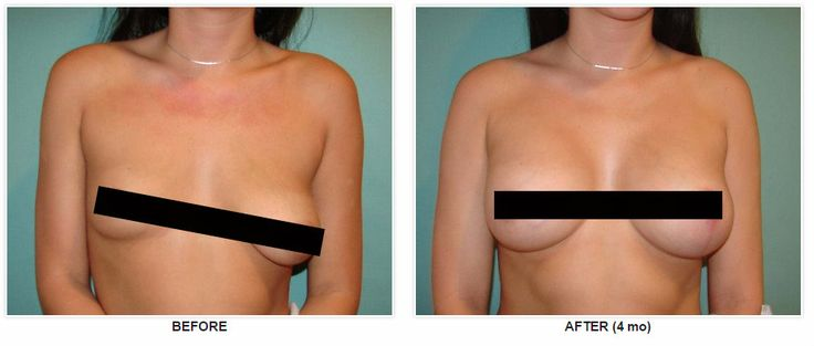 Breast augumentation b cup agree, this