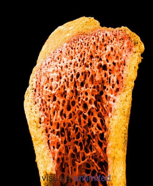 A long bone showing the compact bone ,yellow, surrounding the spongy or cancellous bone ,orange,. SEM X40