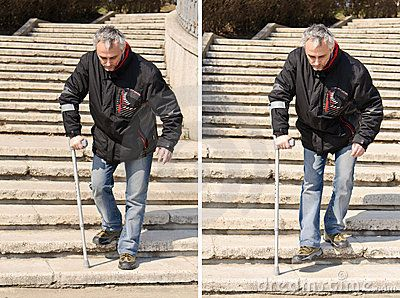 Disabled man with crutch walking on stairs. Sunny day.