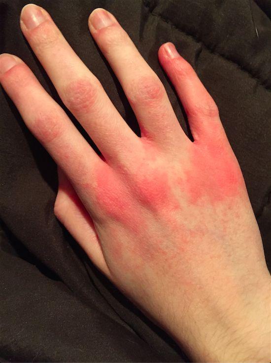 dermatitis on top of hands - photo #8