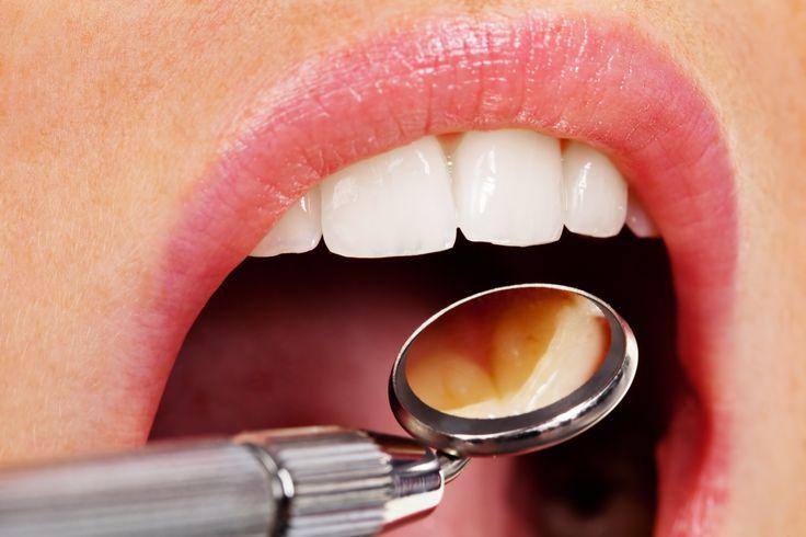 Ce inseamna / Ce presupune profilaxia (detartrajul)?      Indepartarea tartrului supra-gingival si sub-gingival     Indepartarea placii bacteriene     Indepartarea colorantilor/ petelor de pe dinti     Periaj profesional/ Air-flow cu pulbere fructata sau mentolata     Instructaj privind periajul corect si folosirea atei dentare si a apei de gura