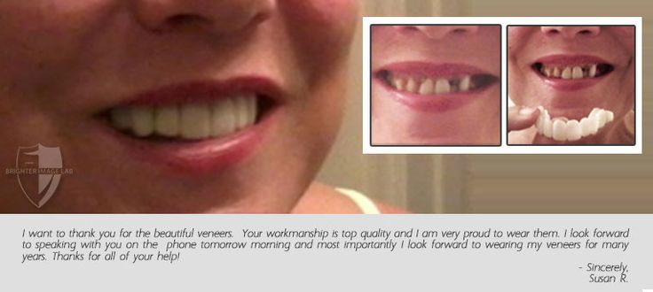 1000 images about brighter image labpresson veneers on