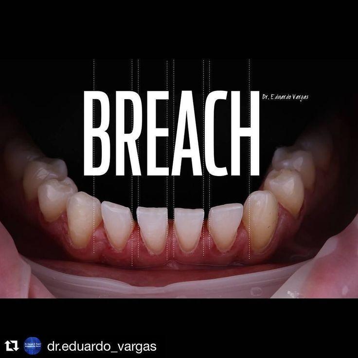 #Repost @dr.eduardo_vargas with @repostapp.  BREACH to be filled by indirect ceramic veneers / BRECHA a ser llenada con restauraciones indirectas ceramicas #dentistry #odontologia #prosthodontics #protesis #estheticdentistry #odontologiaestetica #art #dentalphotography #fotografiadental #dentalanatomy #anterioranatomy #anatomiaanterior #biomimeticstudyclub #occlusal #oclusal #posterioranatomy #anatomiadental #anatomiaposterior #bicuspid #premolar #molar #harmony #function #esthetics #nature…