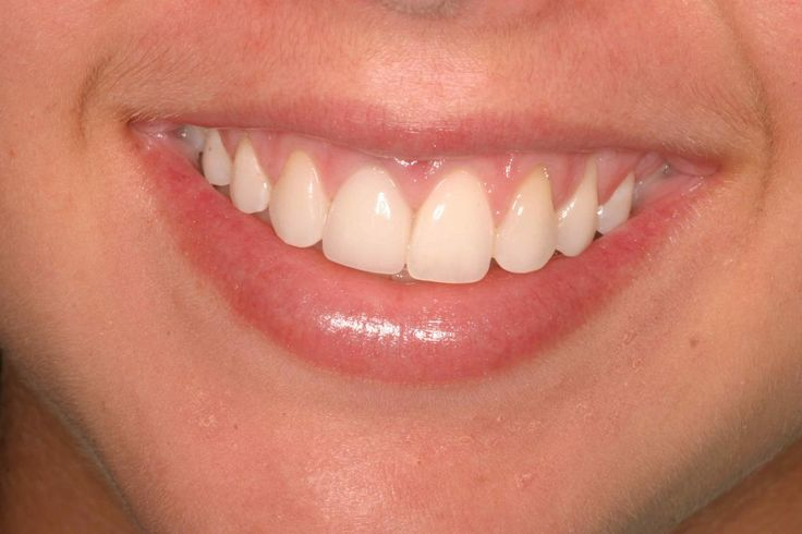 1000 Ideas About Teeth Implants On Pinterest Dental