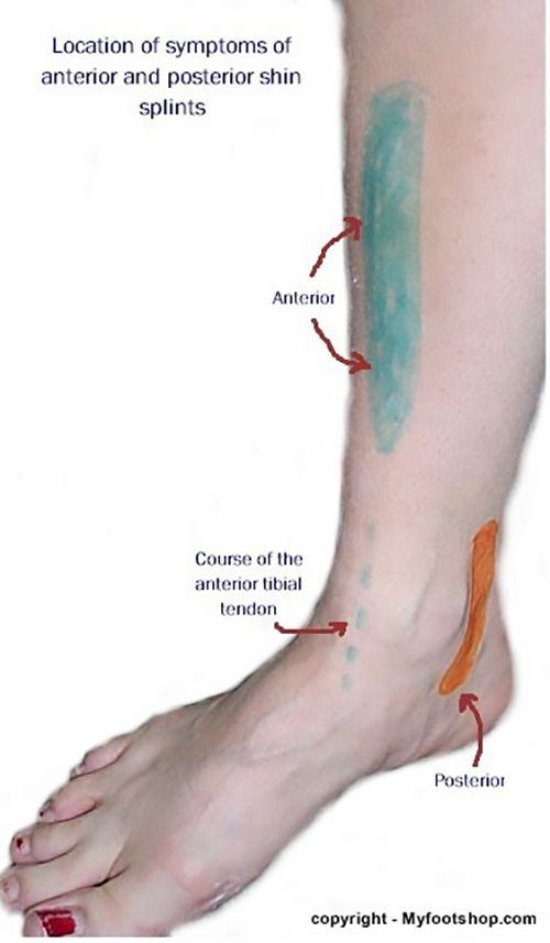 how to help shin splints before running