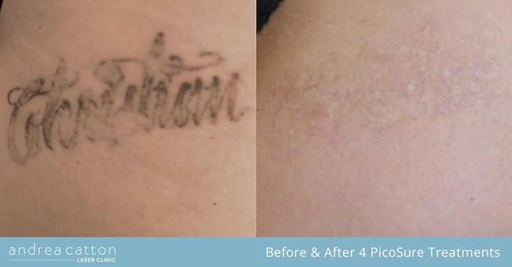 Leg tattoo before and after four PicoSure laser treatments. #tattooremoval #tattoos #inked #tattooregret