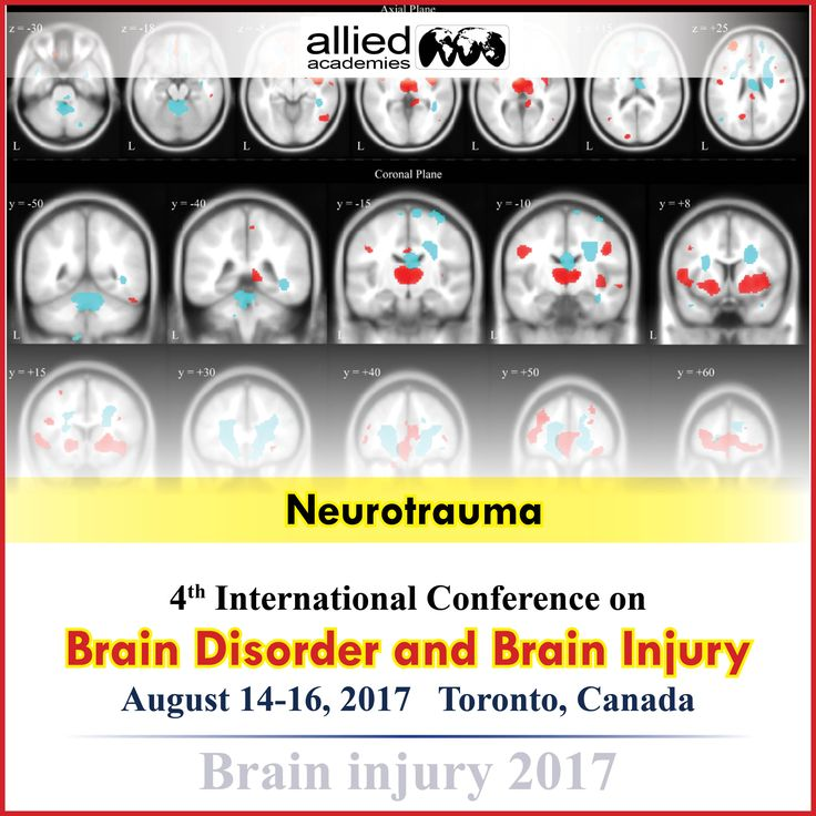 Neurotrauma                Neurotrauma is the injury of a nerve that especially a part of the central nervous system i.e. the brain and spinal cord .Severe # Neurotrauma can be a serious medical emergency and can be lead into the paralysis, brain injury, and death.