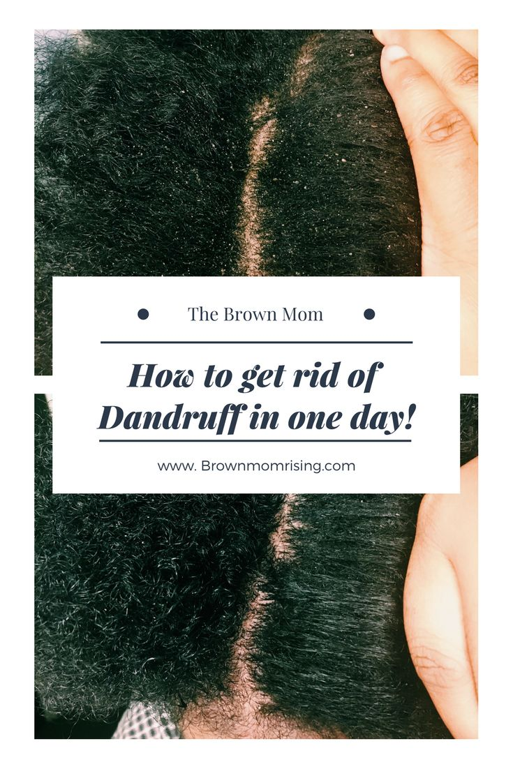 How to get rid of Dandruff in ONE DAY! - Brown Mom Rising