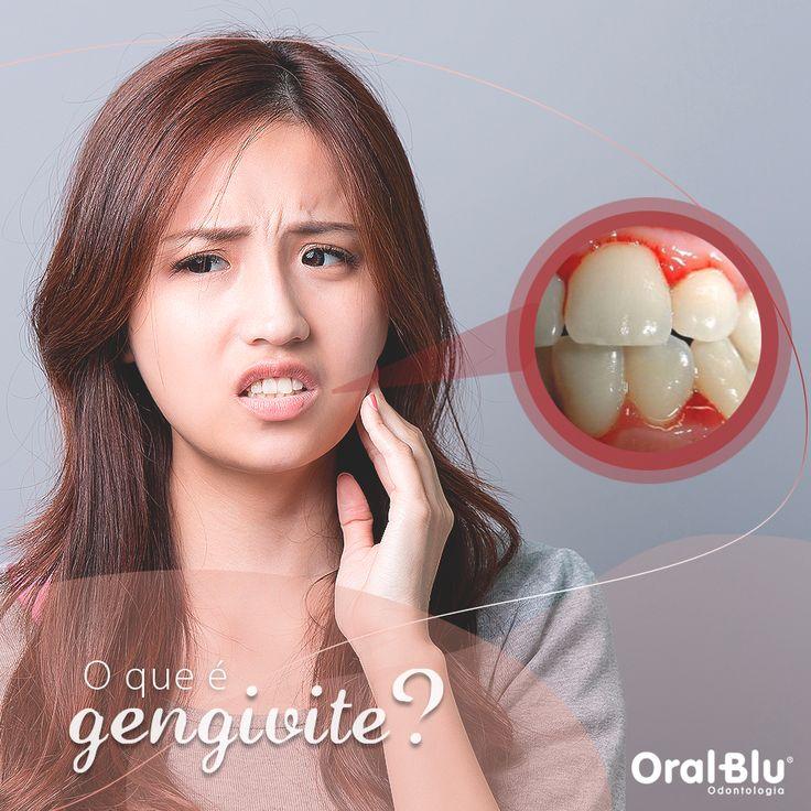 Gengivite é uma inflamação causadas pelo acumulo da placa nos dentes e na gengiva. A gengivite deixa as gengivas sensíveis e vermelhas, podendo sangrar durante a escovação. Uma boa escovação e o uso do fio dental é essencial para prevenção da doença, que pode elevar para casos mais graves como a periodontite ou a periodontite avançada.  <br /><br />Agende sua consulta na OralBlu pelos telefones: (47) 3041-1303| (47) 9967-0460 (WhatsApp) ou faça o seu agendamento online…