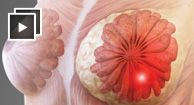 Inflammatory breast cancer is a rare and aggressive form of breast cancer that occurs when malignant cells block the skin and lymph vessels of the breast.