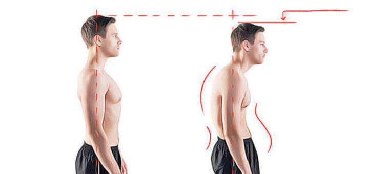 Dos voûté (courbé ou rond) : Exercices pour corriger le dos voûté et retrouver un dos droit. Bonnes postures à adopter contre le dos voûté.