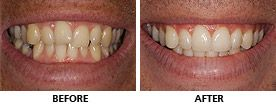 An Inman Aligner was used to straighten this man's teeth in only 10 weeks. Whitening was used to improve the final result even more and he was really pleased with the result. http://www.praisdental.co.uk/straightening/