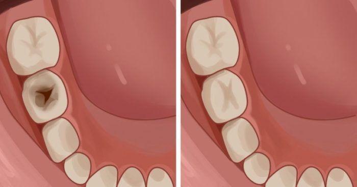 Κίτρινα και σάπια δόντια; Δείτε 5 πολύτιμες συμβουλές τρόπους για καλή στοματική υγιεινή και αστραφτερό χαμόγελο!  #Υγεία