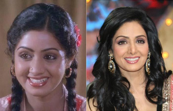Top 25 Celebrities Before And After Plastic Surgery And Nose Jobs Nose Surgery Plastic Surgery Nose Job