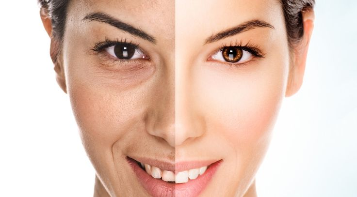 Fat Grafting vs. Fillers for Facial Volume