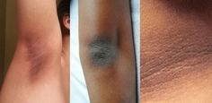 Comment éliminer la peau sèche et sombre sur votre cou, les coudes, les genoux et les aisselles