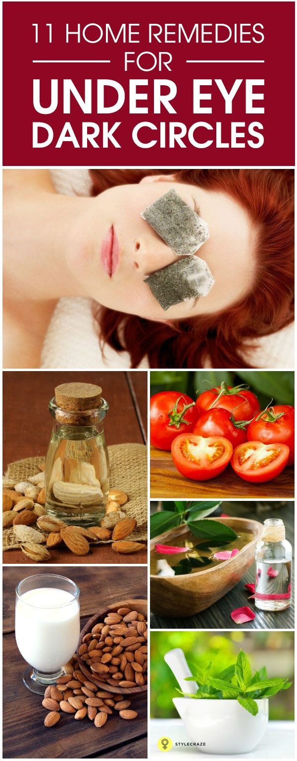 Tired of looking in the mirror and seeing dark circles? Here are natural remedies for them #beauty #tips http://www.stylecraze.com/articles/simple-ways-to-remove-dark-circles-completely?ref=pin