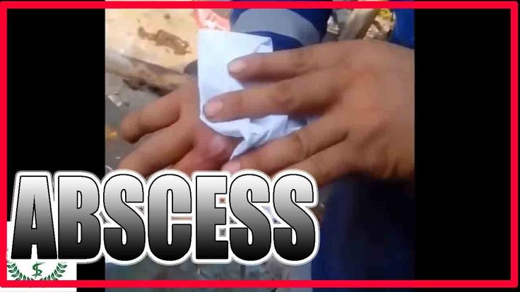 HUGE ABSCESS ON THE ARM #2 - All pimples & Health -