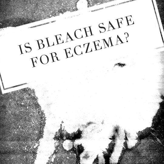 Are bleach baths safe for Eczema? http://topeczematreatments.com/bleach-baths-and-eczema/ #Bleach #Eczema