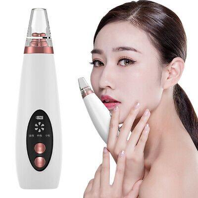 Blackhead remover Skin Care Pore Vacuum Acne Pimpl…