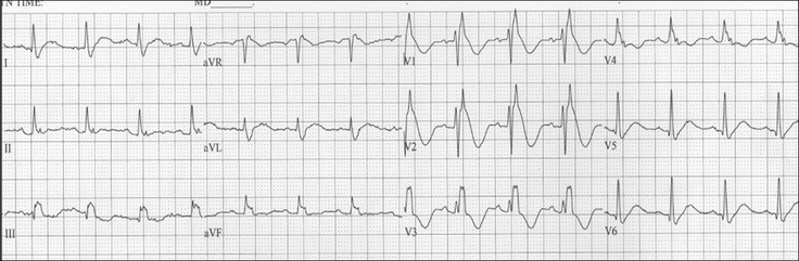 Dr. Smith's ECG Blog: Right Bundle Branch Block with New Anterior ST elevation