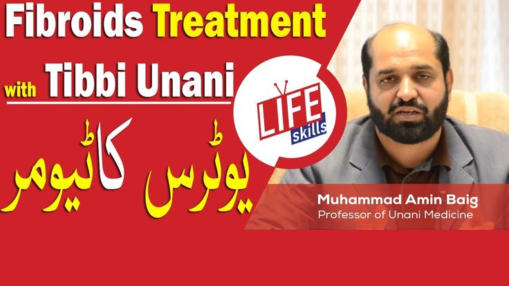 Fibroids Treatment with Tibbi Unani in Urdu/Hindi | Life Skills TV