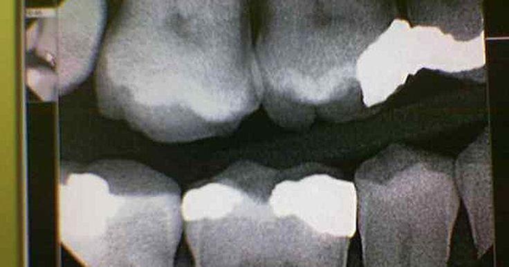 Sintomas de sinusite recorrente: Dor de dente e na mandíbula. Mais de 37 milhões de pessoas sofrem de sinusite a cada ano nos Estados Unidos, segundo o National Institute of Allergy and Infectious Diseases (Instituto Nacional de Alergia e Doenças Infecciosas). Uns dos sintomas de sinusite recorrente mais comuns são dores de dentes e na mandíbula. Esses sintomas podem ser facilmente tratados e prevenidos ao ...