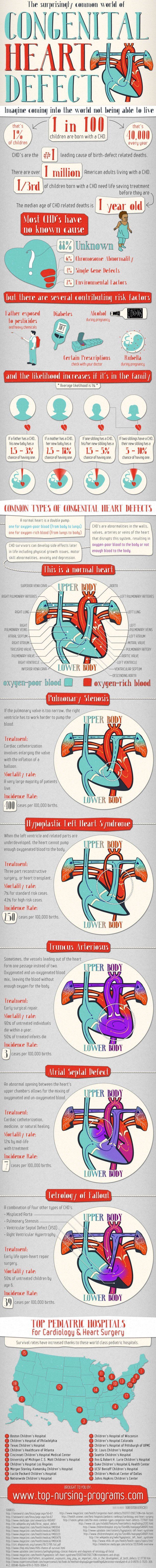 The Surprisingly Common World of Congenital Heart Defect[INFOGRAPHIC]