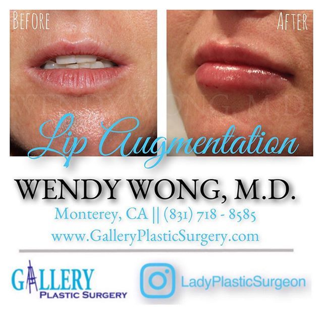 This beauty wanted fuller lips and had 1 cc of Juvederm Ultra XC for lip Augmentation. 💋💋💋 ---------------------------------------------🎉Lip augmentation ⏱Time it takes: 15 minutes 🏡Recovery: no downtime if you don't mind possible bruising 📝 Note: Individual results vary ☎️Phone: (831) 718-8585 💻Website: www.galleryplasticsurgery.com 📱Email: steph.galleryplasticsurgery@gmail.com 🗺Location: Monterey, CA 💉Anesthesia: numbing cream ⏳Lasts: up to 12 - 18 months ‼️Caution: best results…